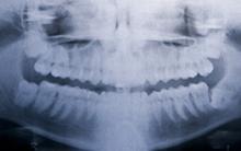 Título Experto de Ortodoncia