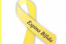 Espina bífida y fisioterapia